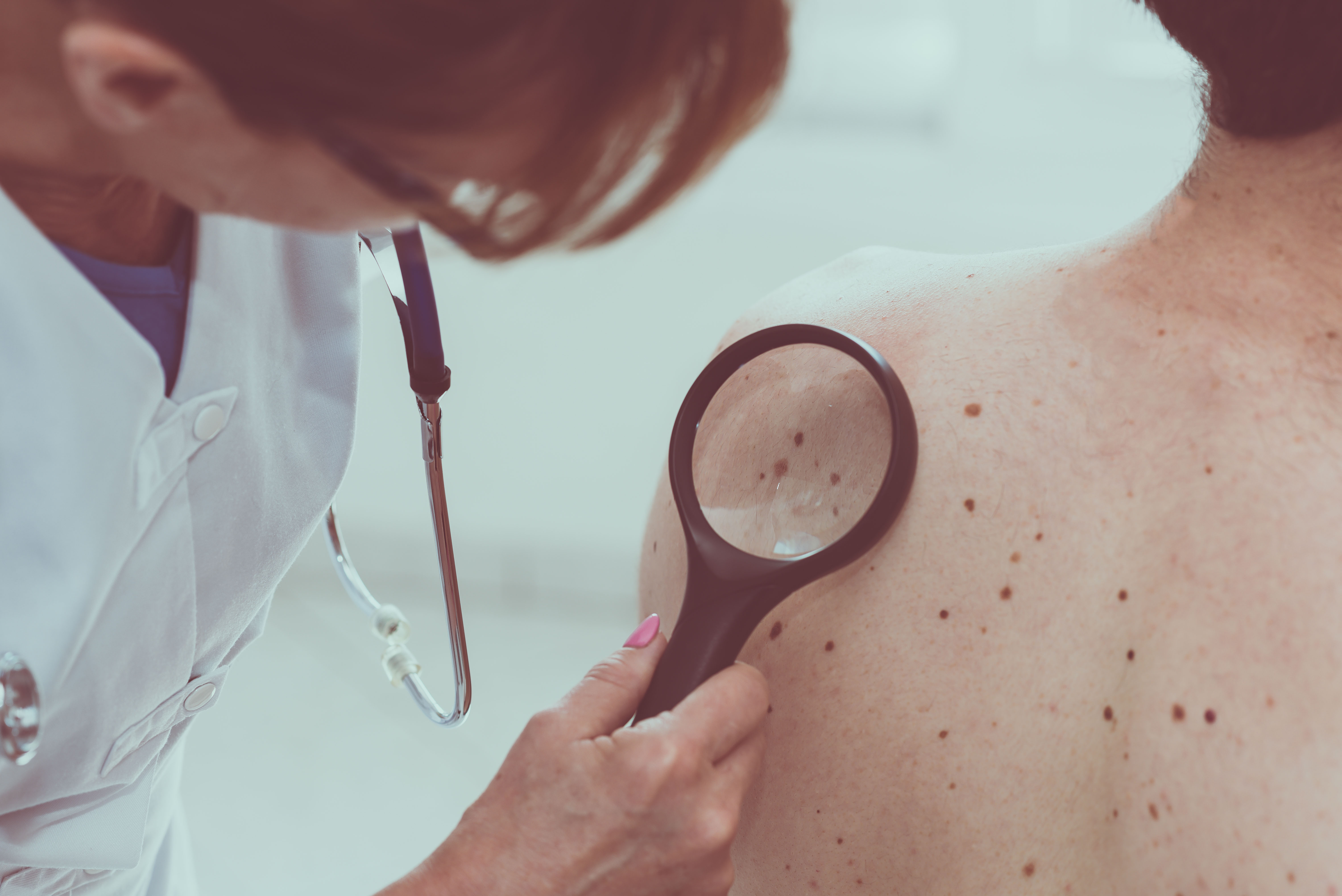 ea03ed9a3b2 Dermatologists offer tips on how to prevent and detect skin cancer ...