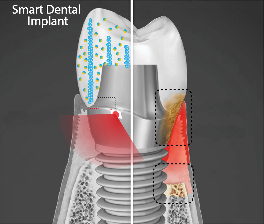 Image of a smart dental implant, involving new tooth screwed into bone