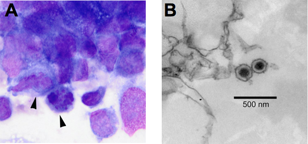 Researchers detected virus particles in cancerous B cells from dogs with lymphoma.