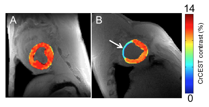 On the left, creatine CEST maps of healthy myocardium in a large animal, and on the right, eight week-old infarcted tissue.