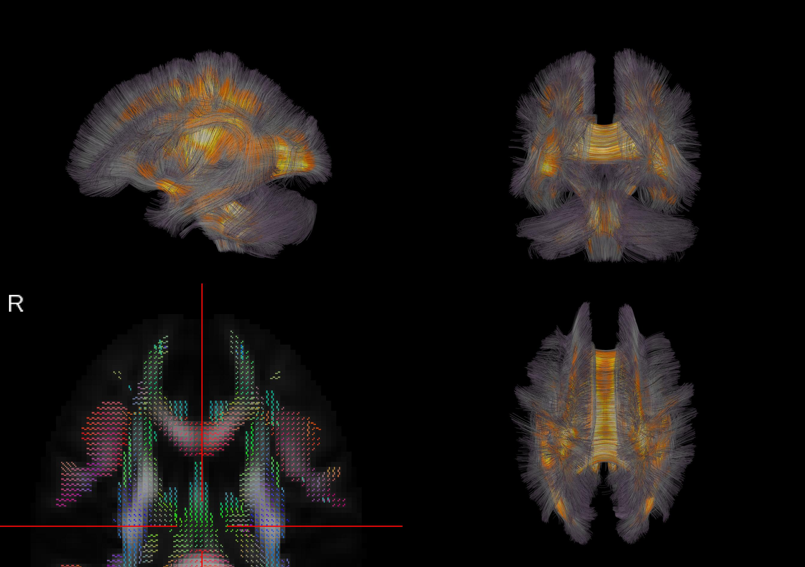 penn university of california and army research lab show how wiring diagrams of the brain which constrain information transmission and communication between different