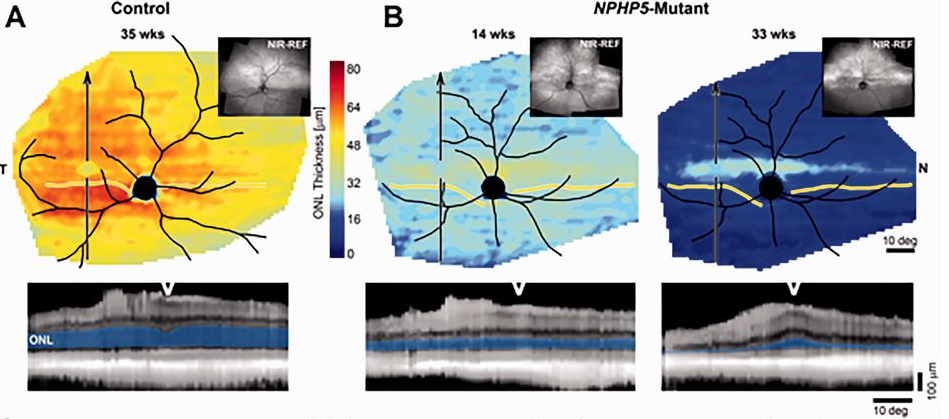 """Dogs with a mutation in NPHP5 showed photoreceptor degeneration, though a """"streak"""" of cones was retained."""