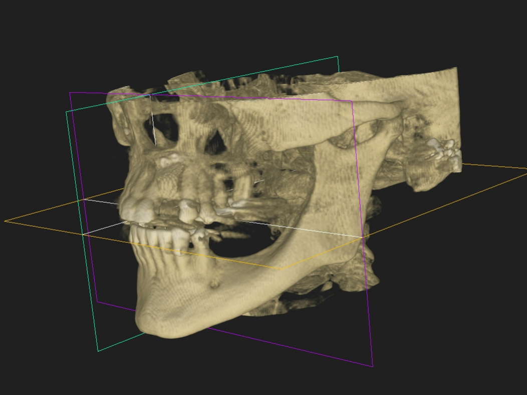 A 3-D reconstruction of a skull of a patient in need of dental implants