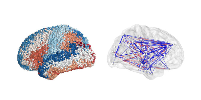 Brain mapping from the Penn-led Restoring Active Memory project.