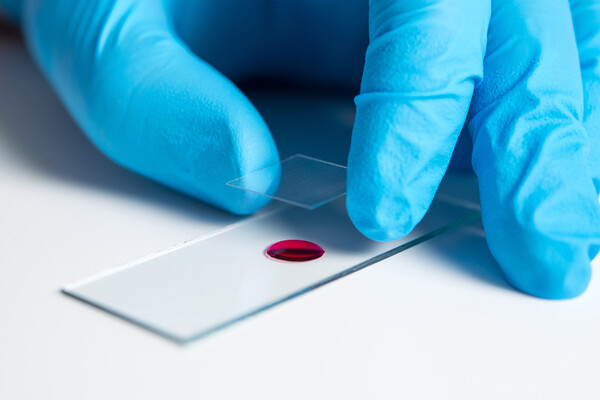 gloved-hand-with-blood-test-glass-slide