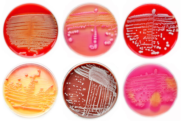 six agar plates with different types of bacteria growing on them
