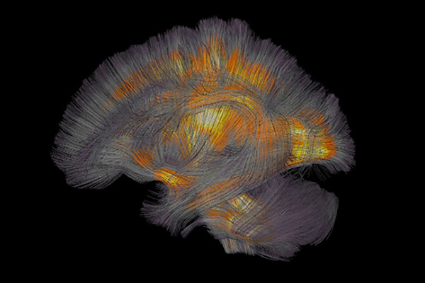 Abstract rendering of brain areas being activated by lighting up.