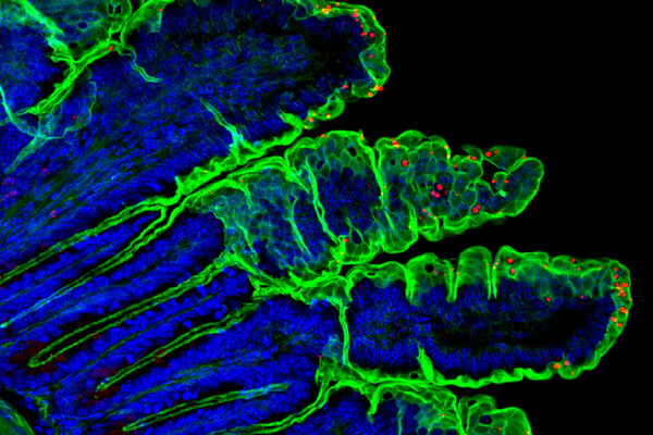 Fluorescent microscopic images shows a section of intestine with blue, green, and red labels.