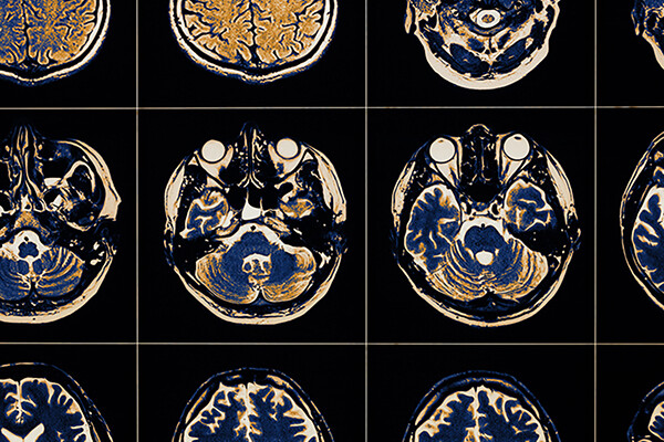 Grid of multiple brain scans