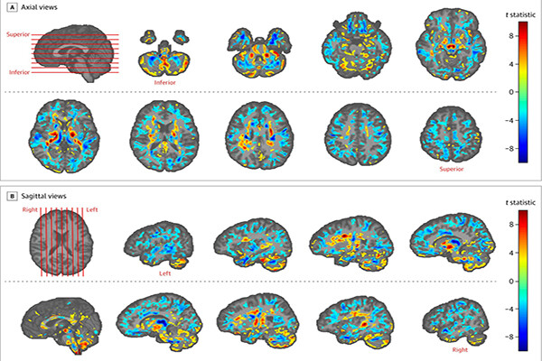 20 brain scans showing regions affected by neurological damage.