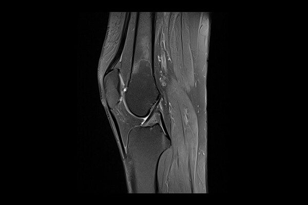 X-ray of human knee joint.