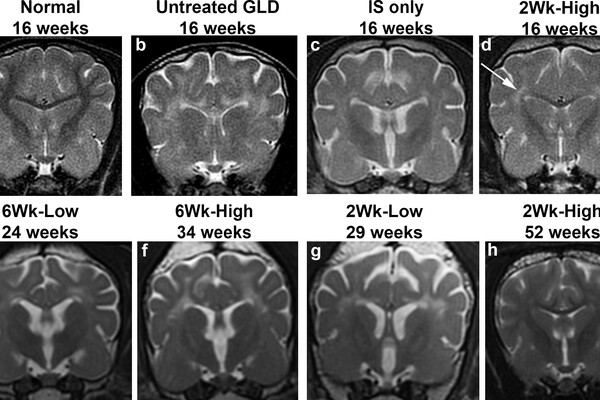 Sequence of 8 MRI images showing treated versus untreated brains from 16 to 52 weeks