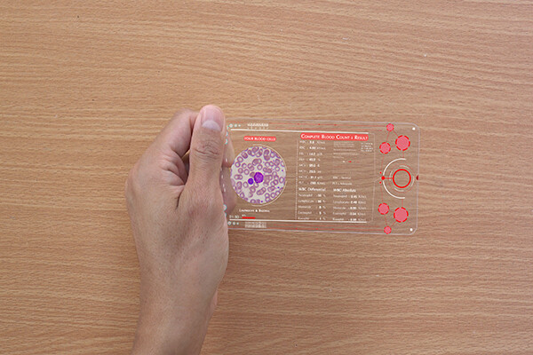 Hand holding clear plastic plate displaying blood sugar data.