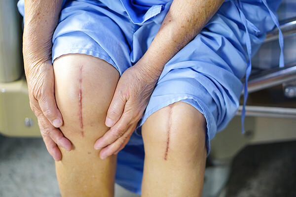 Person in hospital scrubs seated with pant legs rolled up to expose knee surgery scars.