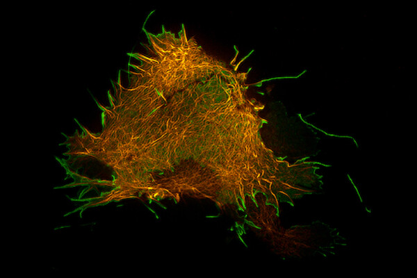 A fluorescent microscopic image of a cell labeled in orange with virus particles emerging from it labeled green.